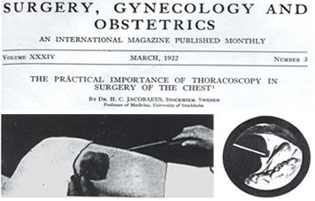 Historia da Simpatectomia